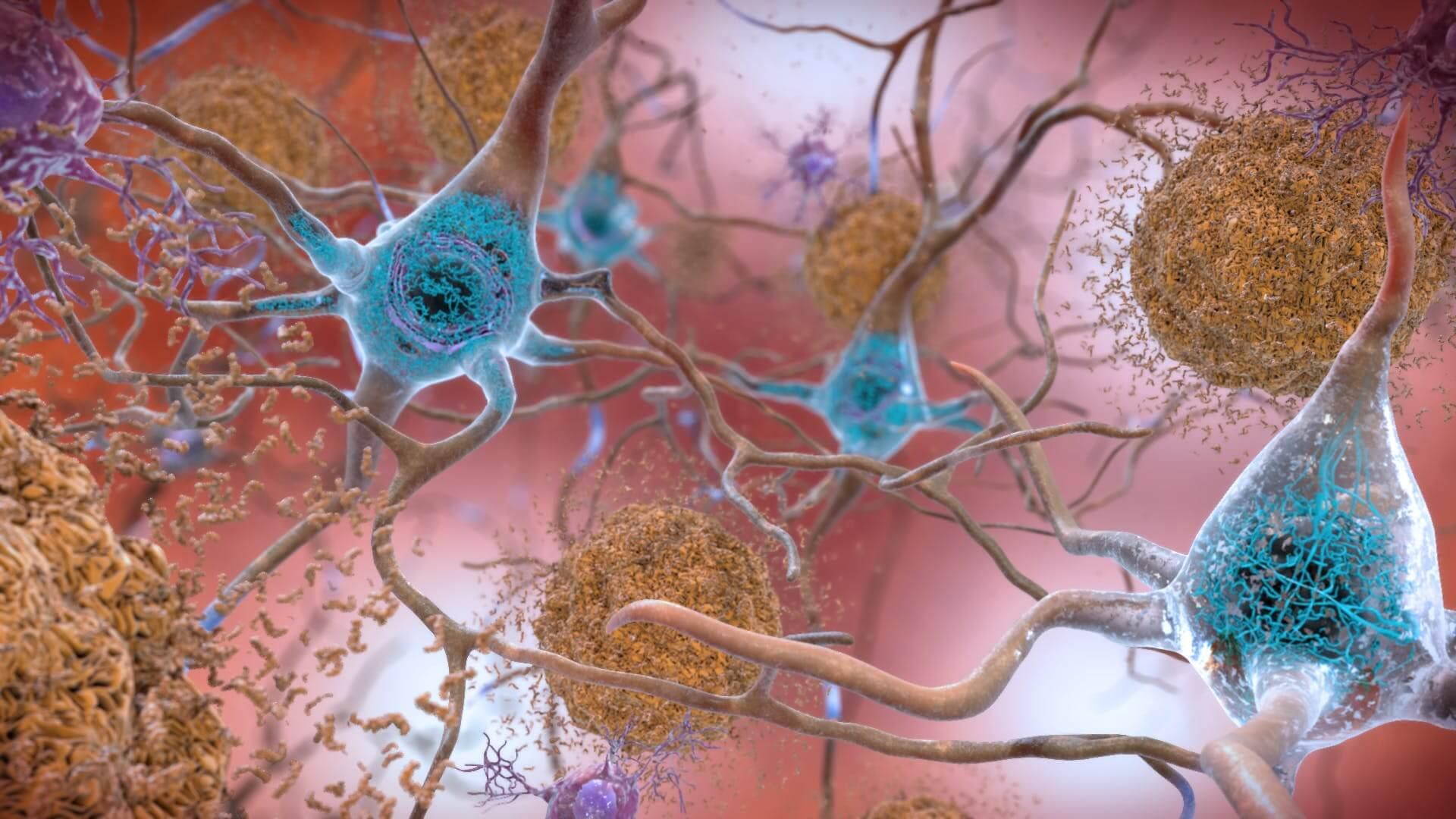 brain 8 13 18 2