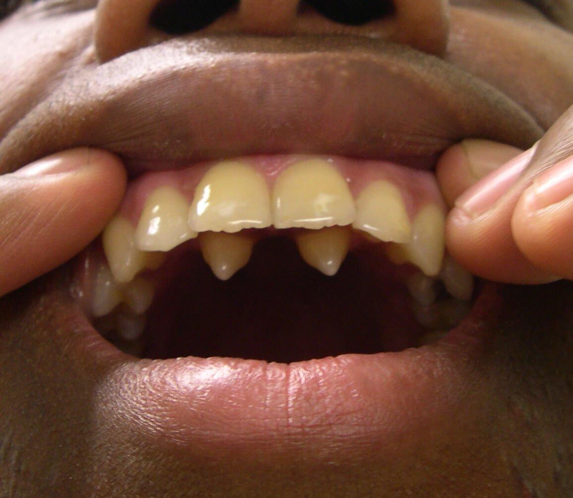 How Freddie Mercury got his voice: It wasn't his teeth