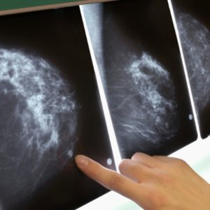 2-20-2019 mammogram breast cancer x ray exlarge