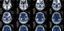 2-10-2019 metabolic brain age wpirhwy nb nr zl kg