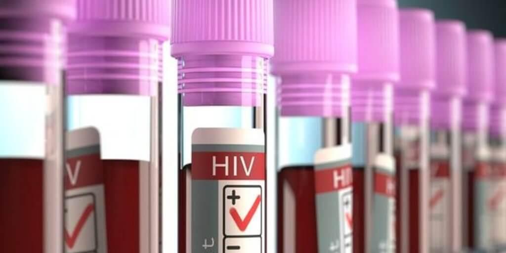 hiv positive blood vials large