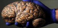 brain featured