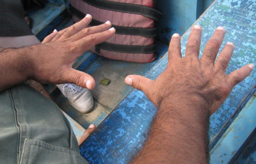 central polydactyly causing person to have six fingers image credit wilhelmy march