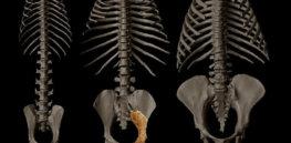 rudapithecus pelvis fossil se p d ea aa e a c fb df b f fit w