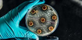 jan novonordiskfoundationcenter bacteriaonplate