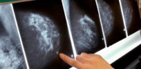 mammogram breast cancer x ray exlarge