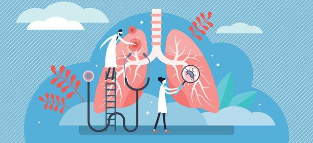 lung doctors