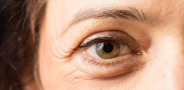 just dermatologists debunk anti aging myths sruilk