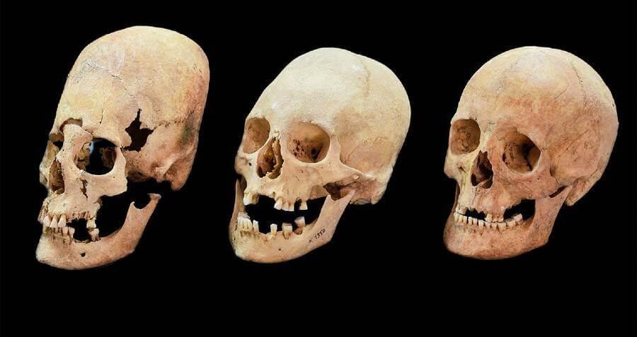 long skull with regular skulls