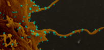 cells infected with sars cov