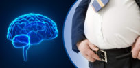 obesity may shrink your brain