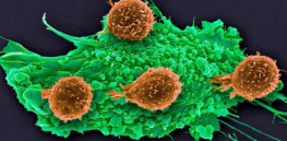 ca nid t cell cancer online