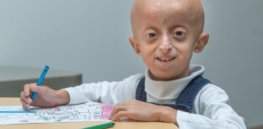 400 children worldwide are born each year with 'fast-aging disease' – Hutchinson-Gilford progeria syndrome. Now CRISPR offers hope