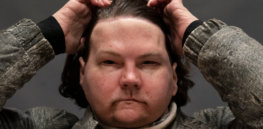 Full face and hand transplants give badly burned man 'new chance at life'