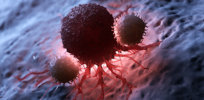 Subtle shift in the causes and treatment of cancer in the US underway