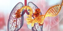 For decades, scientists struggled to find a treatment for one of the most common lung cancer mutations. Amgen has won US approval for the first drug targeting the KRAS variant