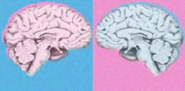 Viewpoint: 'Dump Dimorphism' — Challenging orthodoxy, neuroscientists claim 30 years of studies show 'no meaningful male-female brain differences'