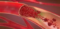 Dangerously high cholesterol? CRISPR gene editing could lower it, tests on monkeys suggest