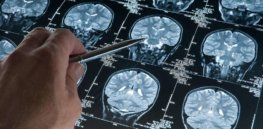 Looking past the aducanumab approval fiasco: 70 Alzheimer's drugs are in the clinical pipeline