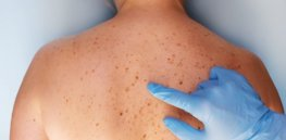 Skin cancer and screening: The good and the bad of 'overdiagnosis'