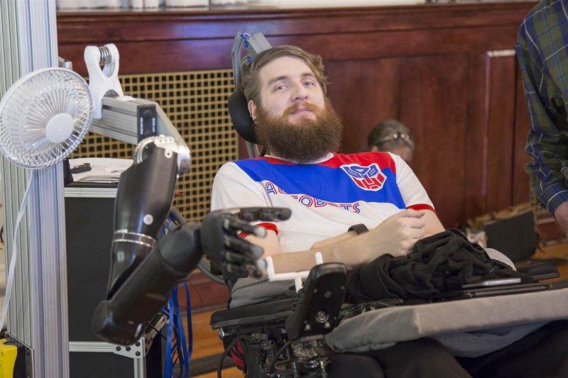 robotic hand mn bd a a eb d f b f nbcnews ux