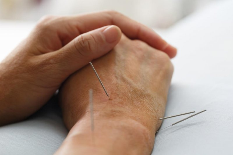 acupuncture on wrist