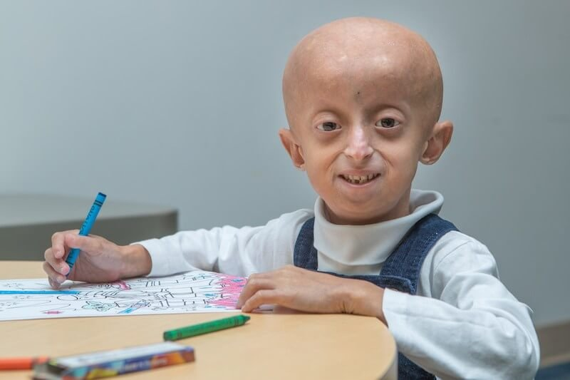 Credit: Progeria Research Foundation