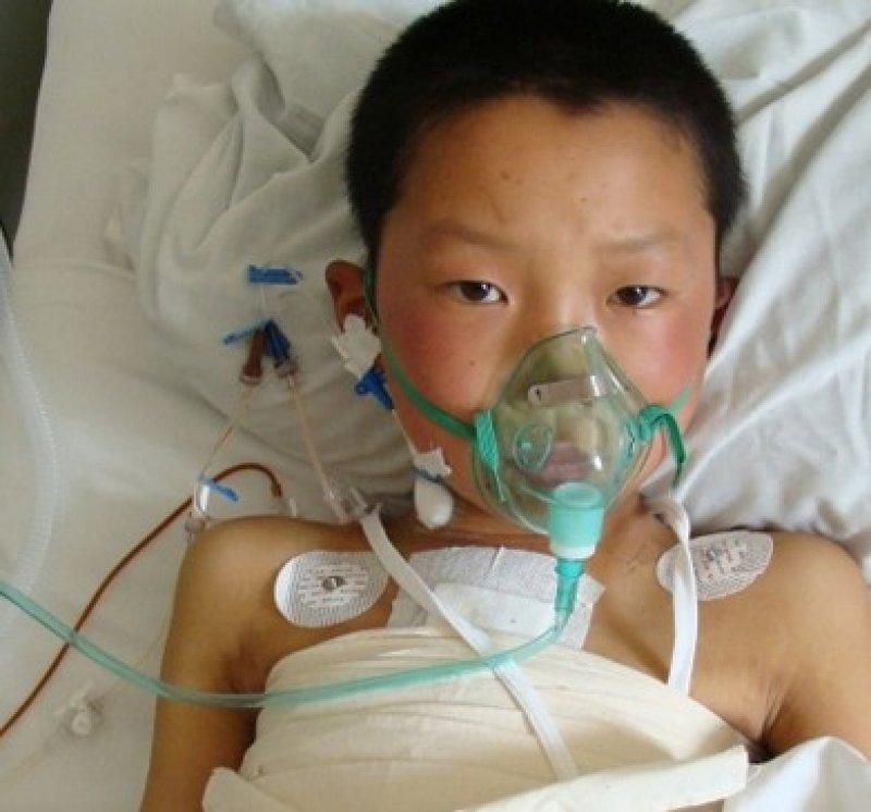 children heart disease radiation risks of cancer