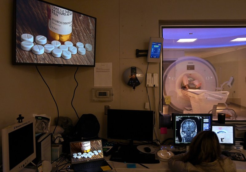 Gerod Buckhalter, in an MRI machine, is shown pictures of addiction triggers as researchers monitor his brain activity. Credit: Washington Post