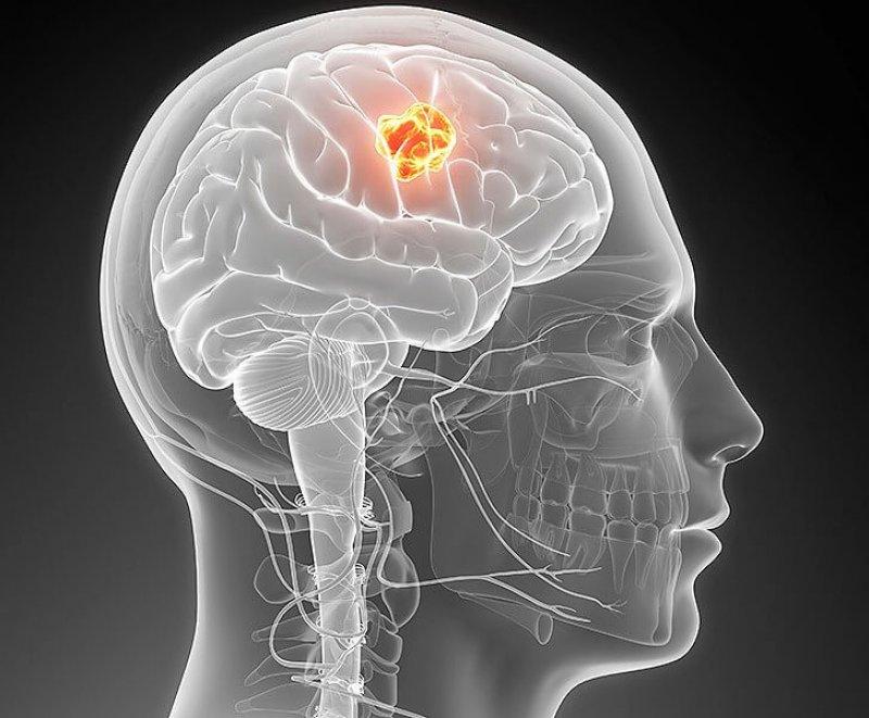 is brain glioblastoma cancer x