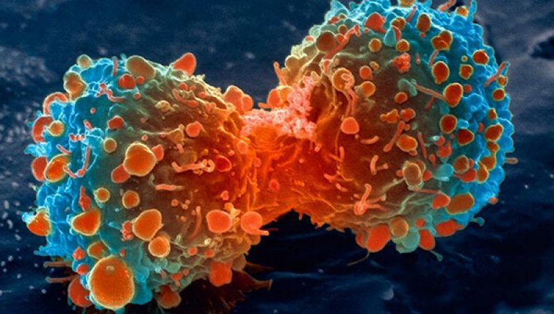 lung cancer cell dividing article v