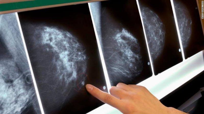 mammogram breast cancer x ray exlarge