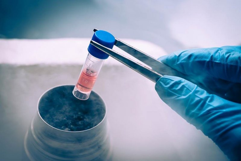 stem cell therapy in neurodegenerative diseases