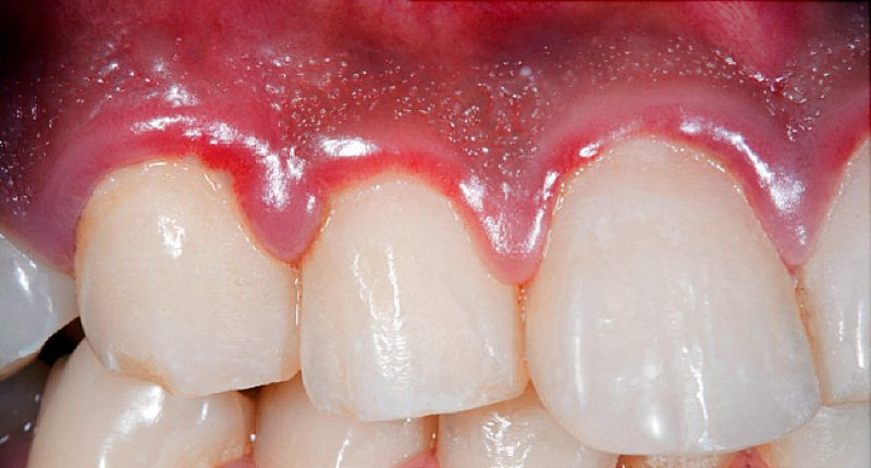 2-4-2019 x gum disease symptoms and treatments features